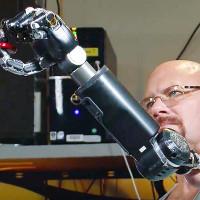 Cánh tay giả điều khiển bằng suy nghĩ tiên tiến nhất thế giới