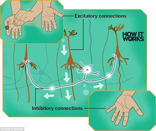 Đồng thời, não bộ ức chế luôn các hình ảnh về tay phải.