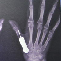 Lần đầu tiên thế giới ghép thành công ngón tay titan