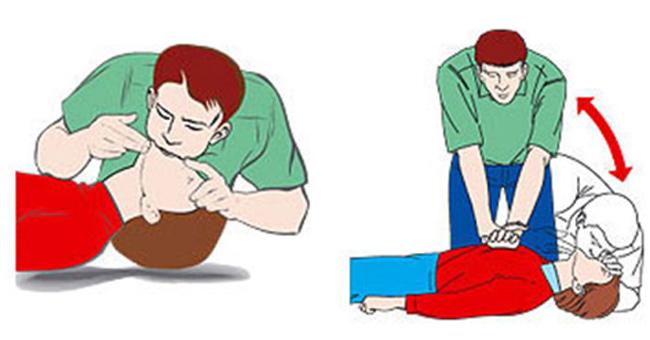 Kỹ thuật sơ cấp cứu