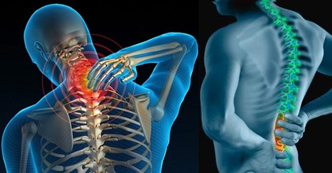 Đau mỏi vai gáy và đau lưng