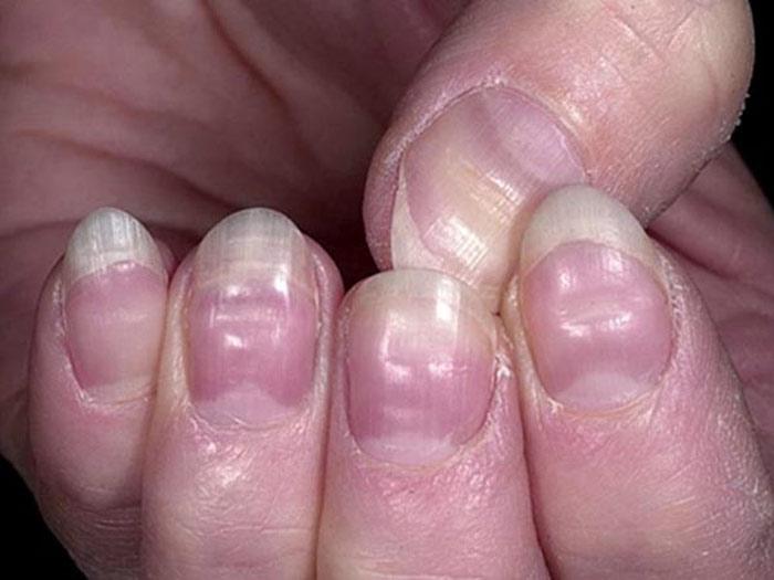 Các rãnh hoặc các nếp nhăn xuất hiện trên móng tay là dấu hiệu cảnh báo suy giảm máu lưu thông đến các ngón tay.