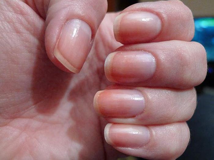 Việc tiếp xúc thường xuyên với hóa chất, sơn móng tay có thể dẫn đến hiện tượng vàng móng hoặc móng tay nhợt nhạt.