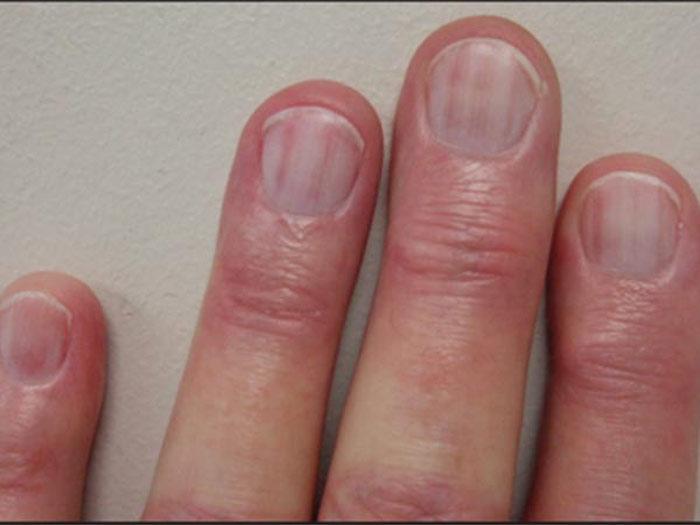 Khi bạn bị chấn thương ở tay, các móng tay có thể xuất hiện tình trạng xuất huyết nhẹ với các tia máu, sọc đỏ.