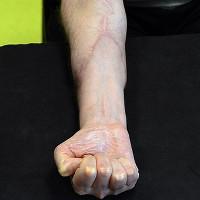 Anh tài trợ miễn phí phẫu thuật ghép tay