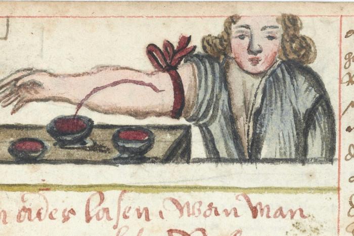 Một người đàn ông đang chích máu chữa nhiễm trùng.