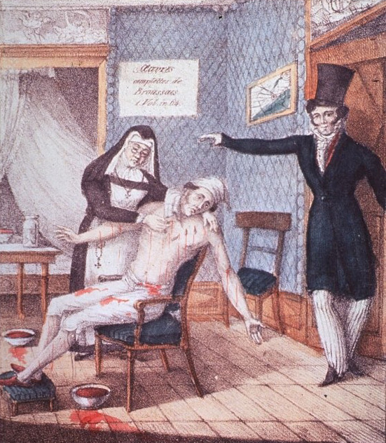 Một người đàn ông đang ngồi trên ghế, hai tay dang ra, dòng máu đổ ra trong khi một nữ tu đặt đỉa vào cơ thể ông ta.