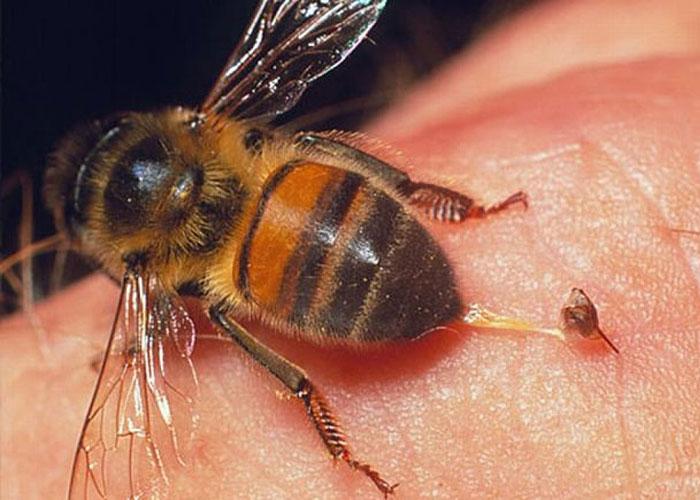 Vết thương khi bị ong đốt