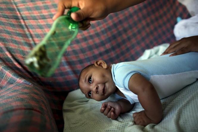 Một bé trai bốn tháng tuổi ở Recife, Brazil bị teo não.