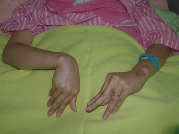 Co rút bàn tay (dấu hiệu Trousseau/bàn tay đỡ đẻ) trong hạ canxi máu.