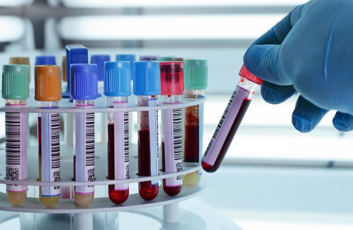 Giá trị thường nằm trong khoảng từ 4.300 đến 10.800 tế bào/mm3.