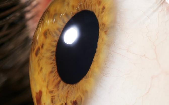 Những virus từ gene tảo sẽ giúp những người khiếm thị bẩm sinh có thể nhìn thấy ánh sáng.