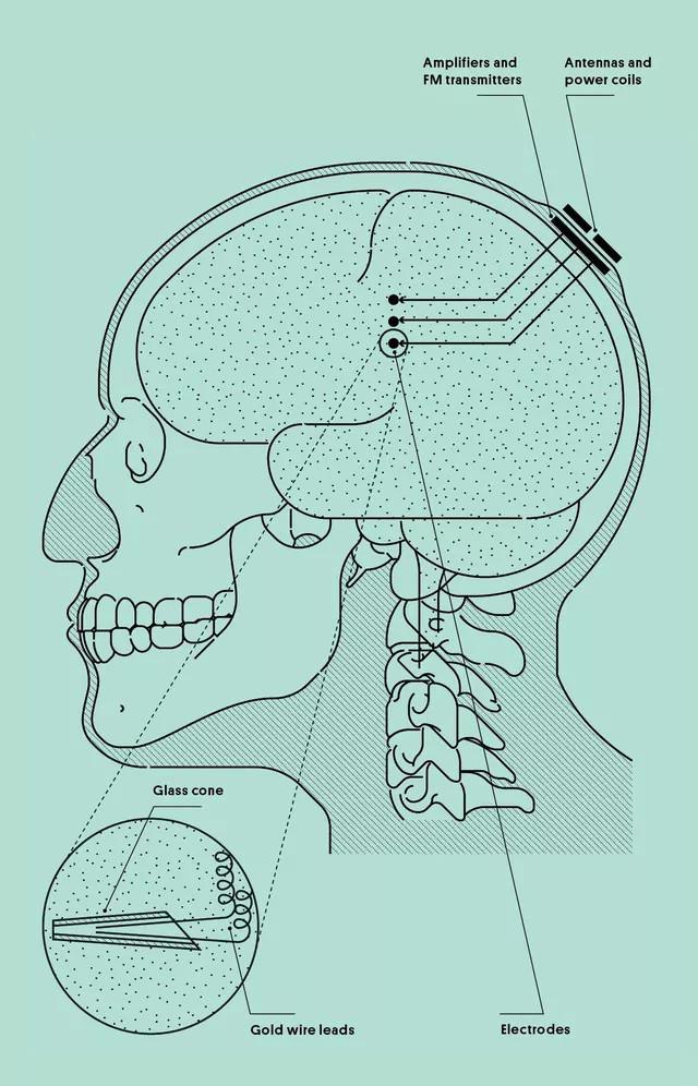 Minh họa việc đặt các điện cực của Kennedy vào trong não.