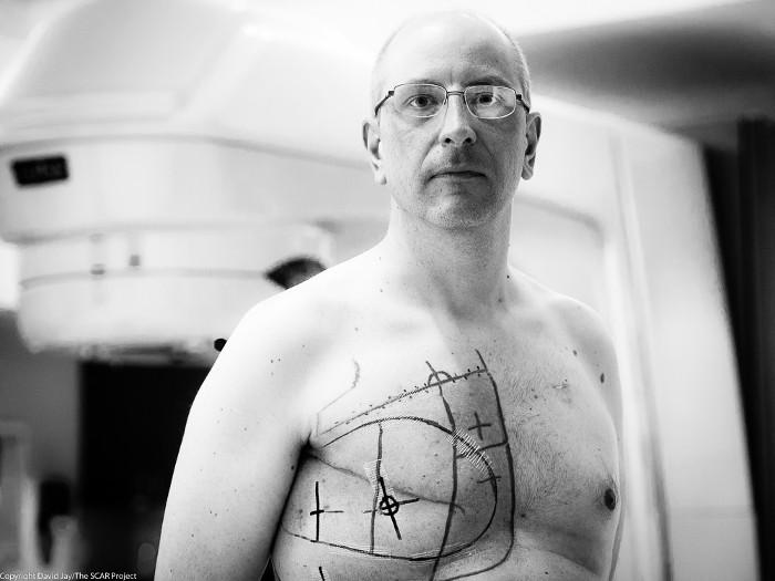 Các bác sĩ đánh dấu lên ngực Bogler để tiến hành hóa trị.