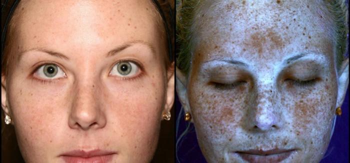 Làn da tưởng như bình thường dưới máy quay tia UV.