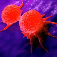 Nhật ký giải mã bí mật của 200 căn bệnh ung thư nhờ toán học tại Anh