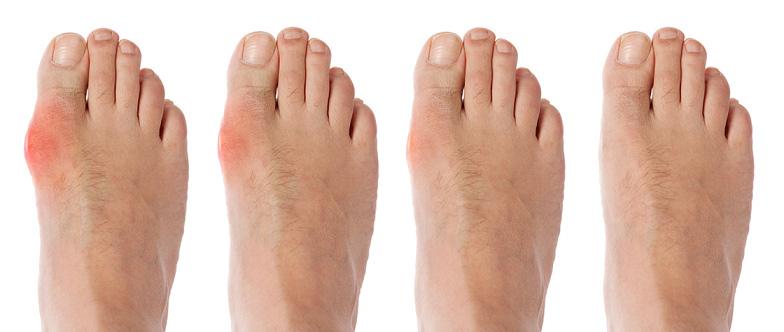 Bệnh gout nằm trong nhóm bệnh lắng tụ tinh thể (crystalline deposition disease).