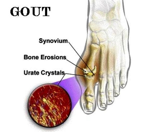 Nồng độ acid uric trong máu cao và kéo dài có nguy cơ bị gout cao