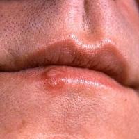 WHO cảnh báo: 50% dân số thế giới có thể mắc bệnh Herpes