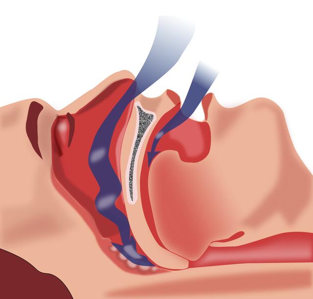 Ngưng thở khi ngủ gây ra bởi các mô mềm phía sau họng chặn đường thở