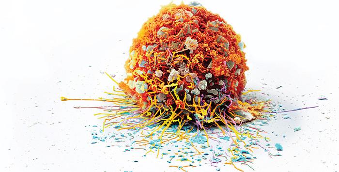 Hoàn toàn có thể quan sát quá trình phát triển của những đột biến trên DNA ngay bên trong một khối u.