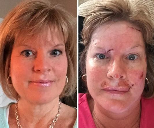 Cloud trước và sau khi phẫu thuật loại bỏ các điểm ung thư.