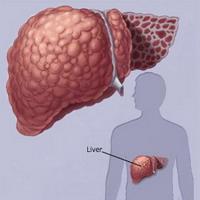 Dấu hiệu sớm của bệnh xơ gan