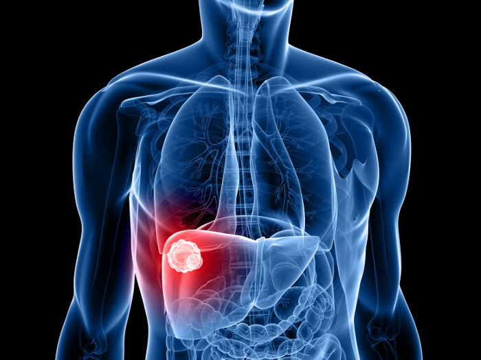 Điều trị u gan thường phải phối hợp nhiều phương pháp, không một phương pháp nào là tối ưu.