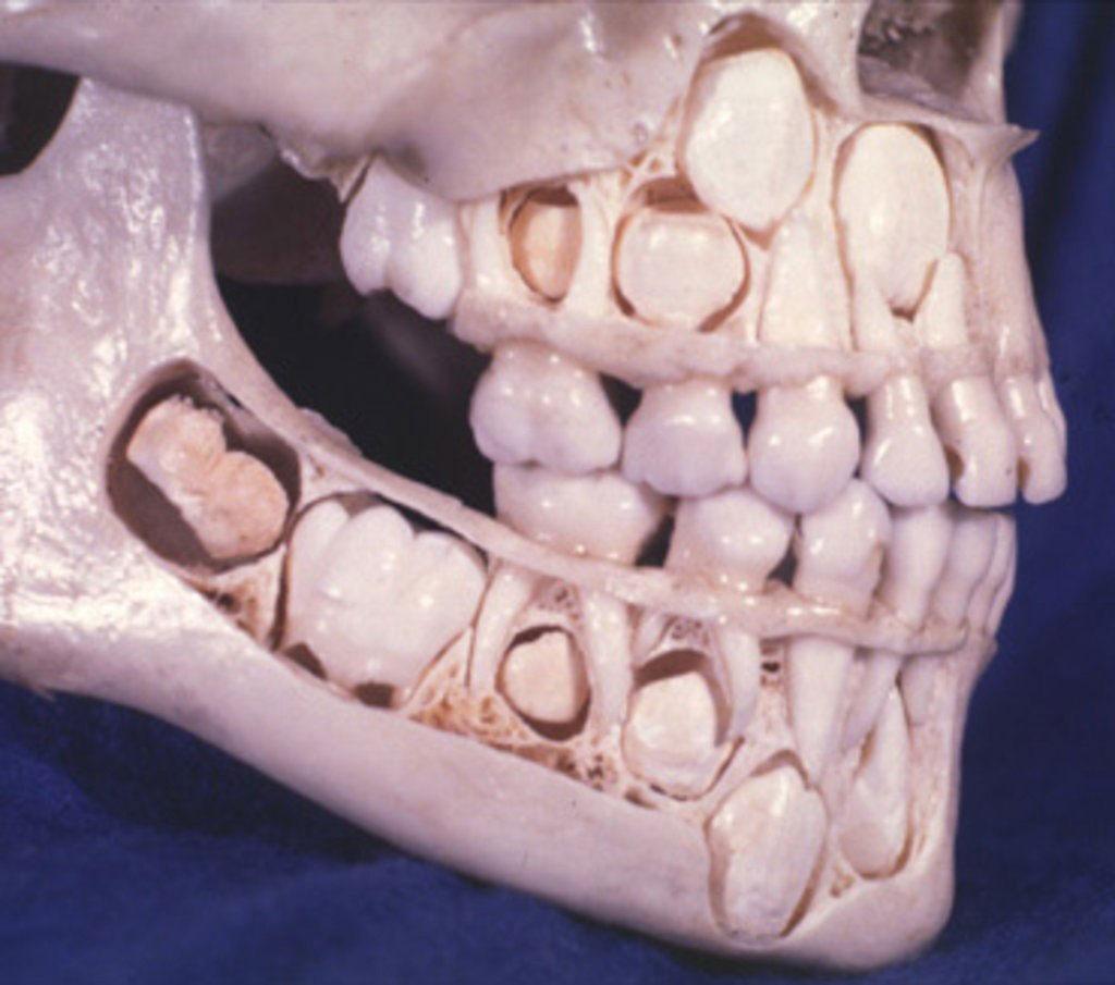 Bộ xương hàm của trẻ em trước khi rụng răng
