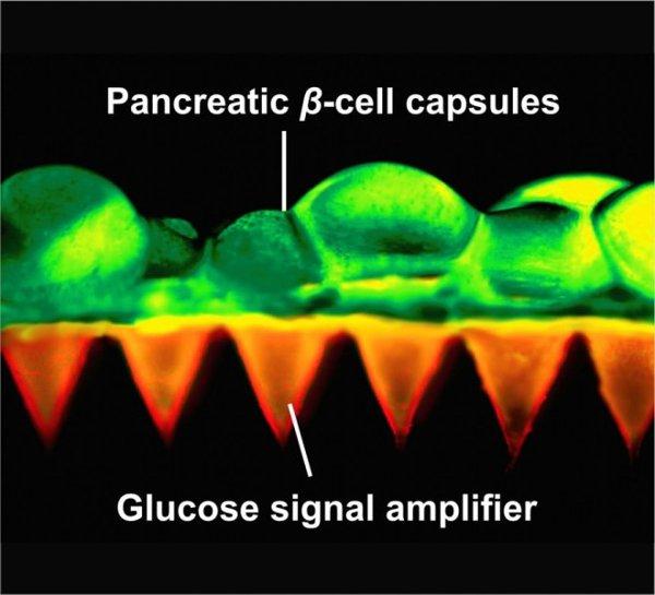 Thiết kế miếng dán với các tế bào β và cơ chế khuyếch đại tín hiệu đường glucose.