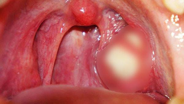 Sỏi amidan xuất hiện nhiều là triệu chứng của bệnh viêm amidan mãn tính