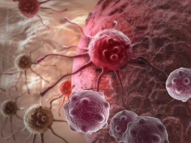 Phương pháp chiếu xạ truyền thống không thể tiêu diệt hết tế bào ung thư.