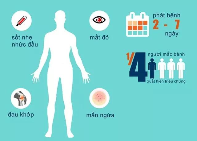 Triệu chứng của người nhiễm virus Zika.