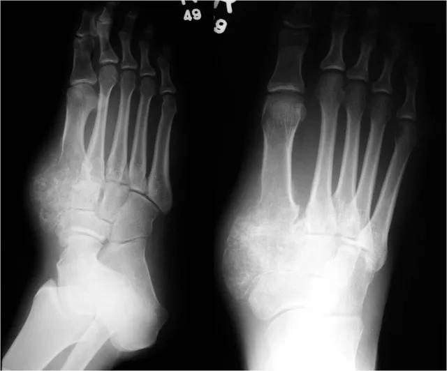 Sụn trung mô thường xảy ra ở xương sống, xương sườn và hàm.