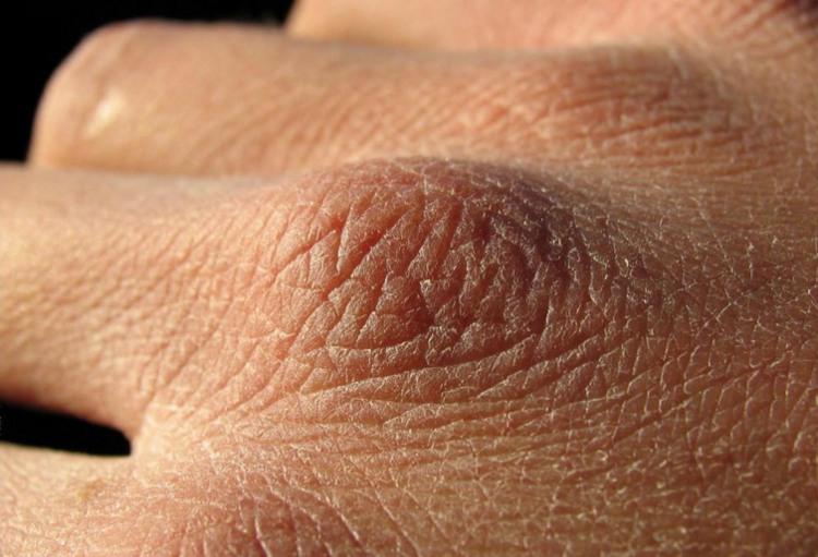 Vùng da ở khu vực khớp xương bàn tay bị bong tróc, nứt nẻ.