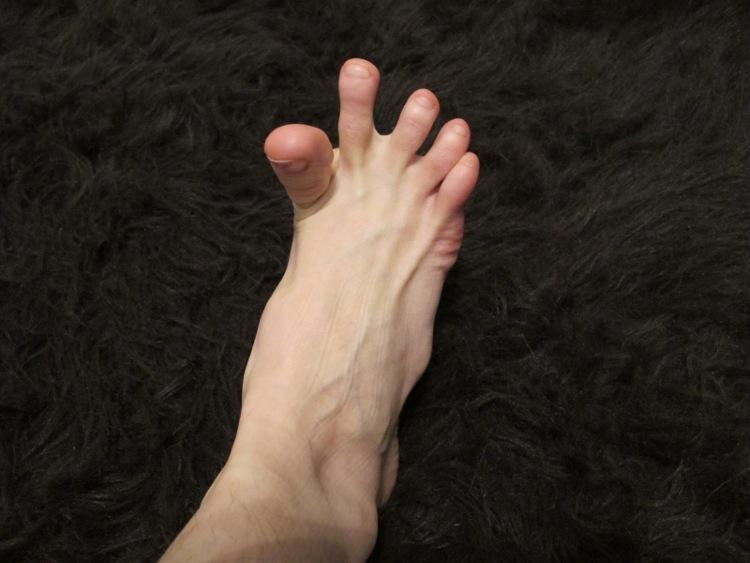 Khi thiếu nước, thân nhiệt cơ thể tăng lên nên khả năng bị chuột rút cao.