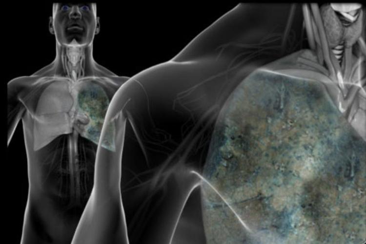 Ung thư phổi có biểu hiện đau ngực, khó thở và ho lâu ngày không khỏi.