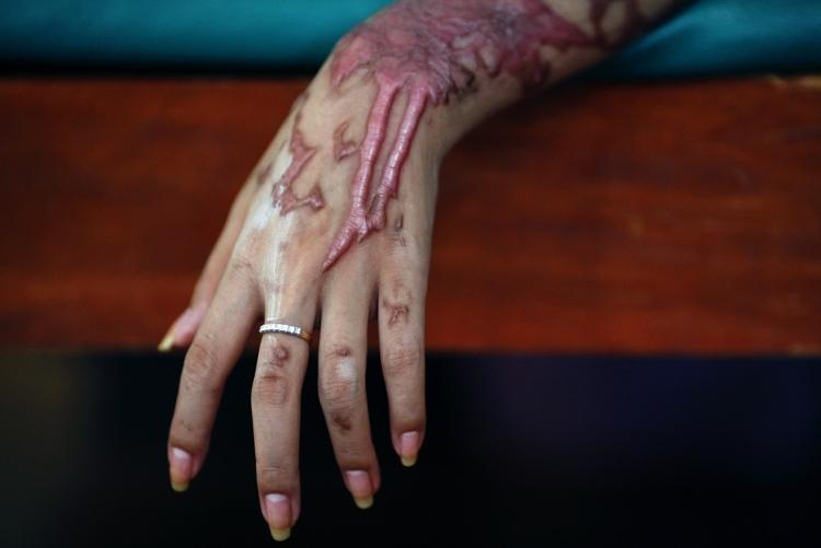 Bỏng axit gây ra những hậu quả khó lường trên da.