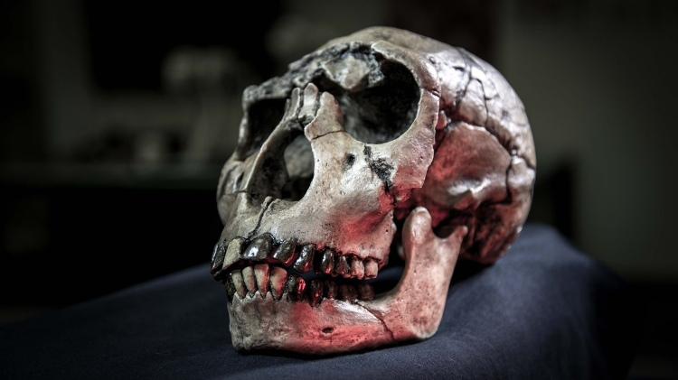 Theo quá trình tiến hóa, não bộ của loài người ngày càng phát triển về kích thước. Do đó xương hàm phải thu nhỏ lại để cân đối với phần dưới hộp sọ. Điều này dẫn tới hệ quả là không còn chỗ cho răng khôn nhú lên khỏi nướu.
