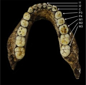 Răng được đánh số thứ tự: M1, M2, M3 là răng hàm, C là răng nanh, P3, P4 là răng tiền hàm (răng cối).