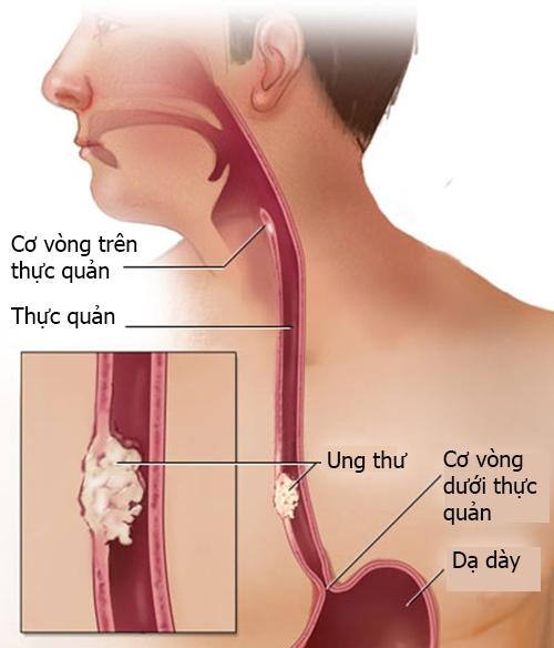 Ung thư thực quản dễ nhầm lẫn với các với các bệnh lý khác ở thực quản và vùng hầu họng.