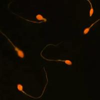 Nghiên cứu mới về thuốc tránh thai cho cả nam và nữ chữa được vô sinh ở nam giới
