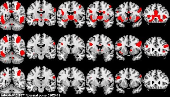 Nghiên cứu mới đã chỉ ra, hoạt động não của người nghiện ma túy và người nghiện tình dục có điểm giống nhau.