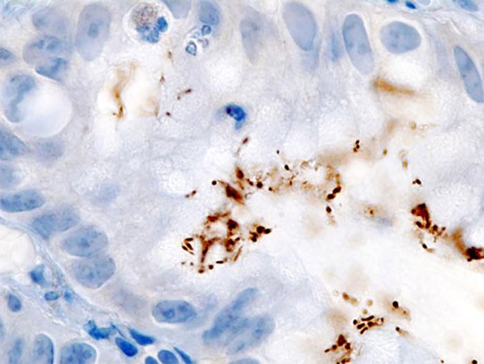 Nhận diện miễn dịch đối với mô bệnh Helicobacter.