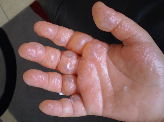 """Chứng bệnh trong hình mang tên phytophotodermatitis - còn gọi là bệnh """"dị ứng với ánh Mặt trời""""."""