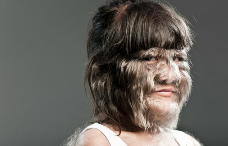 Supatra Sasuphan có làn da phủ đầy lông.