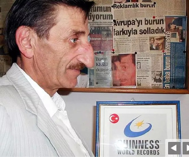 Chiếc mũi của ông Mehmet Ozyurek có độ dài đáng ngạc nhiên.