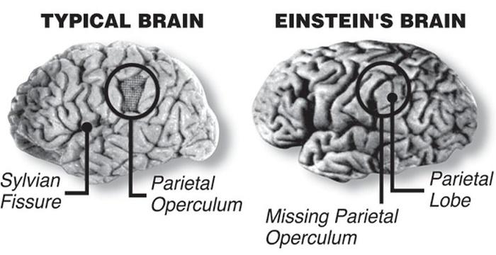 Não của Albert Einstein có một thùy lớn hơn 15% so với bộ não trung bình.