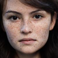 Tại sao con người có tàn nhang?