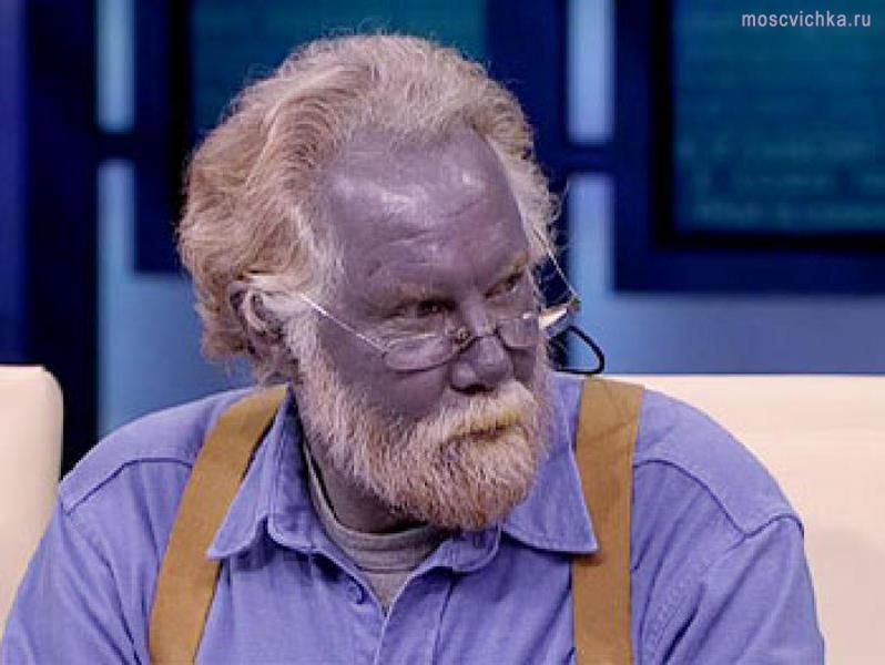 Làn da đặc biệt của một người mắc bệnh Met-H.